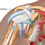 Sd Subacromial