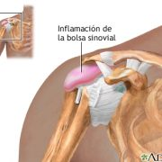 bursitis hombro