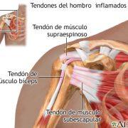 Tendinitis manguito Rotador 1